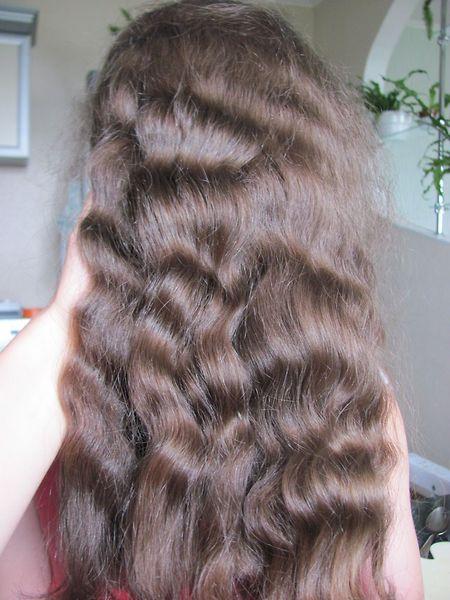 Что делать если выпадают волосы после кесарева